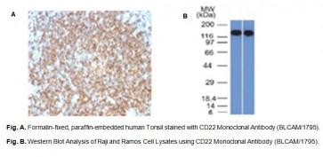 Anti-CD22 / BL-CAM Antibody (BLCAM/1795)