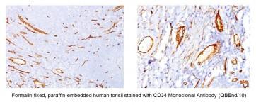 Anti-CD34 Antibody (QBEnd/10)
