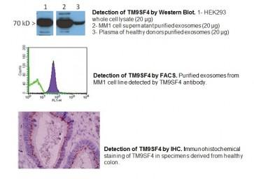 Anti-human TM9SF4 antibody