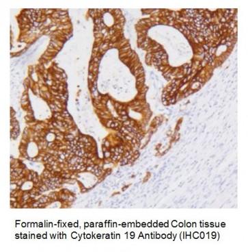 Anti-Cytokeratin 19 Antibody (IHC019)