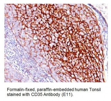 Anti-CD35 / CR1 Antibody (E11)