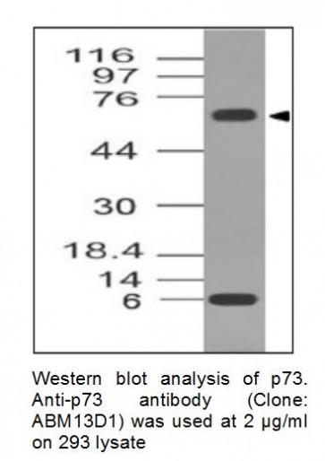 Anti-p73 Monoclonal Antibody (Clone: ABM13D1)