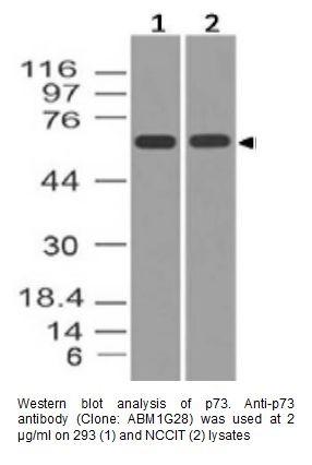 Anti-p73 Monoclonal Antibody (Clone: ABM1G28)