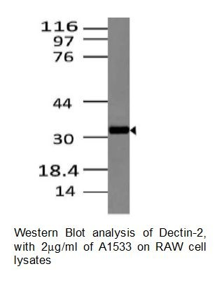 Anti-Dectin-2 Monoclonal Antibody (Clone: ABM2H28)