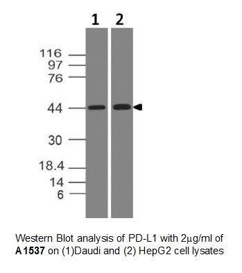 Anti-PD-L1 Monoclonal Antibody (Clone: ABM5F25)