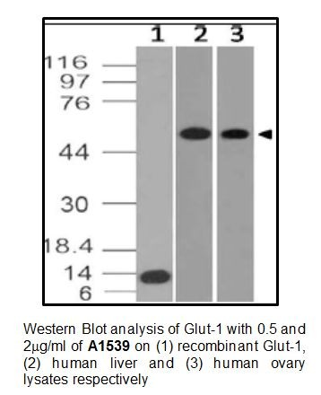 Anti-Glut-1 Monoclonal Antibody (Clone: ABM4G40)