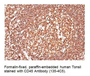 Anti-CD45 / LCA Antibody (Clone 135-4C5)