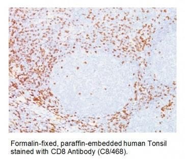 Anti-CD8A Antibody (C8/468)