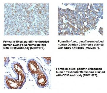 Anti-CD99 / MIC2 Antibody (MIC2/877)