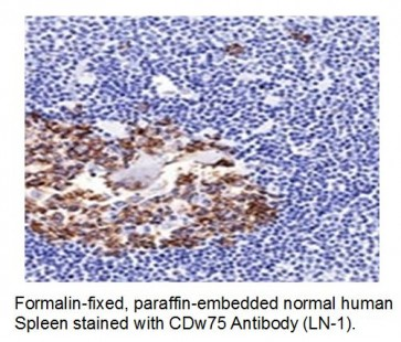 Anti- CDw75 Antibody (LN-1)