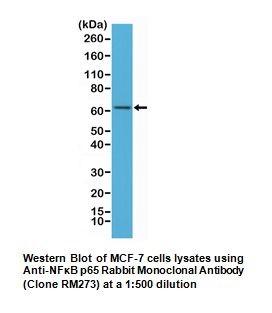 Anti-NFkB p65 Rabbit Monoclonal Antibody