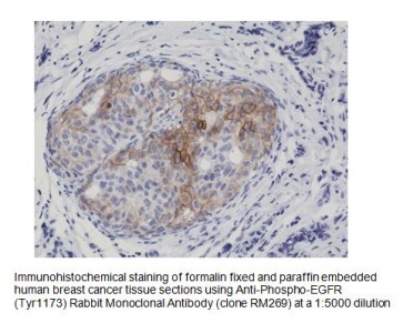 Anti-Phospho-EGFR (Tyr1173) Rabbit Monoclonal Antibody