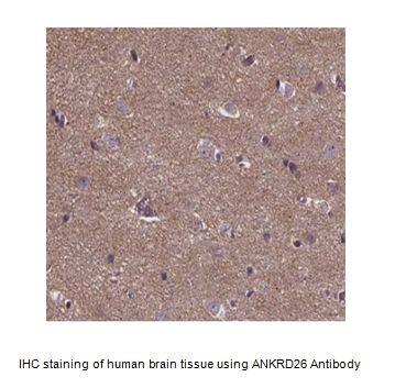 Anti-ANKRD26 Antibody