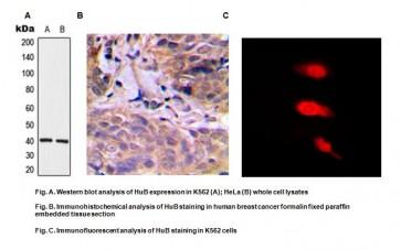 Anti-HuD Antibody