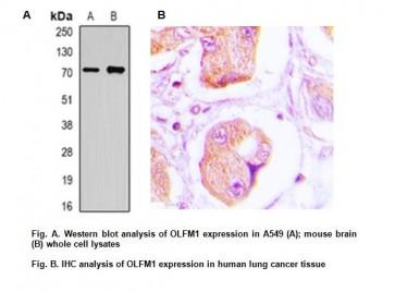 Anti-OLFM1 Antibody