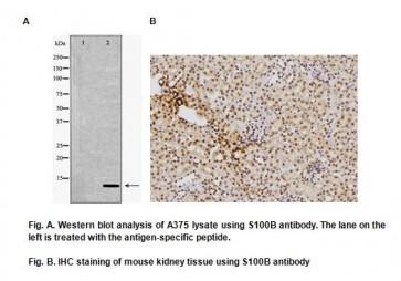 Anti- S100B Antibody