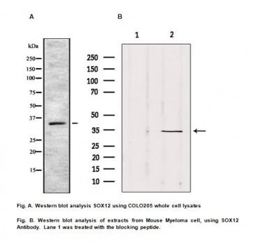 Anti-SOX12 Antibody