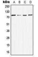 Anti-MELK Antibody