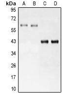 Anti-LRH1 Antibody