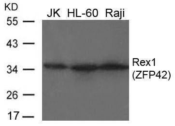 Anti-REX 1 Antibody