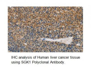 Anti-SGK1 Antibody
