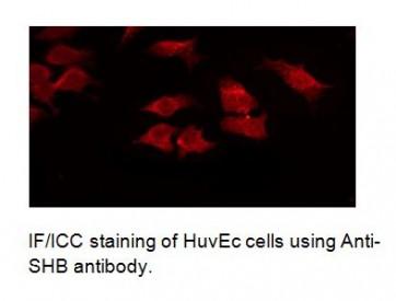 Anti-SHB Antibody