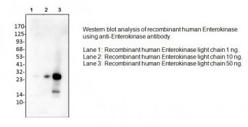 Anti-Enterokinase Antibody
