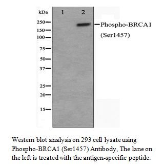 Phospho-BRCA1 (Ser1457) Antibody
