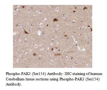 Phospho-PAK3 (Ser154) Antibody