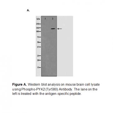 Phospho-PYK2(Tyr580) Antibody