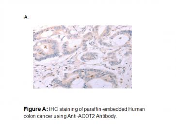 Anti-ACOT2 Antibody