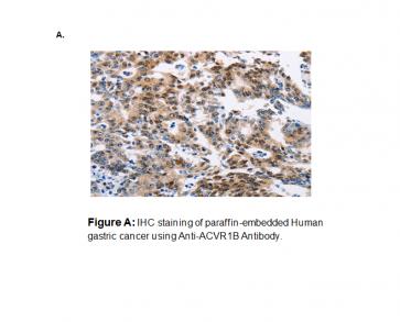 Anti-ACVR1B Antibody