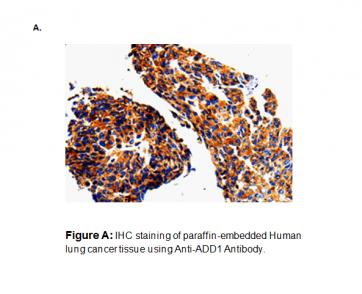 Anti-ADD1 Antibody