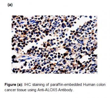 Anti-ALOX5 Antibody