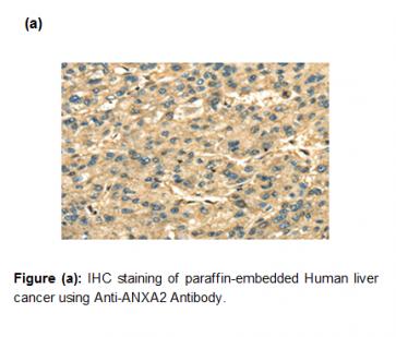 Anti-ANXA2 Antibody