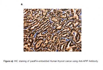 Anti-APIP Antibody