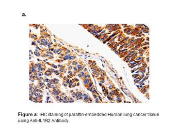 Anti-IL1R2 Antibody