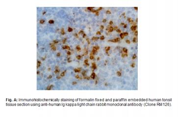 Anti-Human Kappa Light Chain, Rabbit Monoclonal Antibody