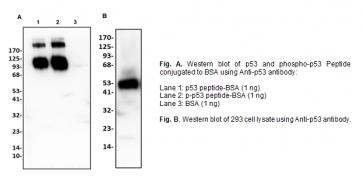 Anti-p53 Antibody