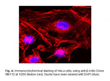 Anti-β-Actin, Rabbit Monoclonal Antibody