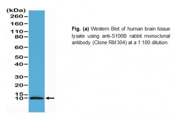 Anti-S100B, Rabbit Monoclonal Antibody