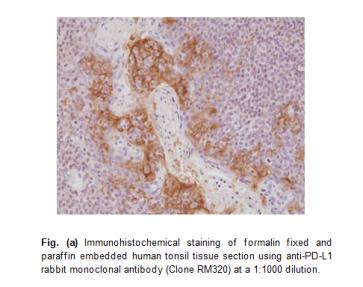 Anti-PD-L1 (CD274) (B7-H1), Rabbit Monoclonal Antibody