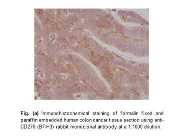 Anti-CD276 (B7-H3), Rabbit Monoclonal Antibody