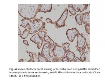 Anti-PLAP (Placental alkaline phosphatase) Rabbit Monoclonal Antibody (RM317)