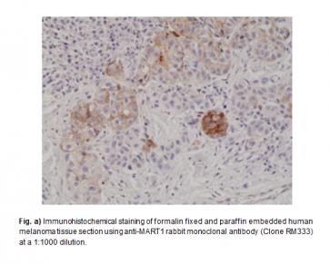 Anti-MART1 Rabbit Monoclonal Antibody (RM333)