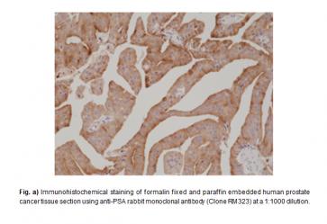 Anti-PSA, Rabbit Monoclonal Antibody (RM323)