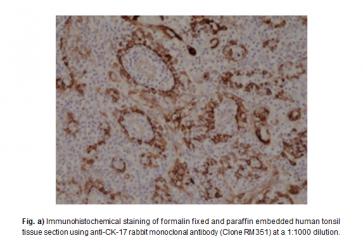 Anti-Cytokeratin 17 (CK-17) Rabbit Monoclonal Antibody (RM351)