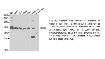 Anti-ERCC1 Antibody