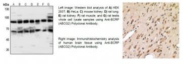 Anti-BCRP (ABCG2) Polyclonal Antibody