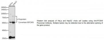 Anti-PCSK9 Polyclonal Antibody